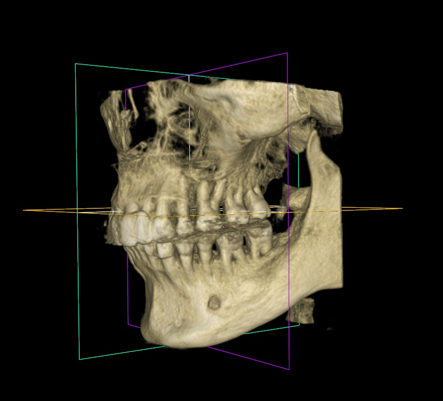 jaw-surgery-section.jpg