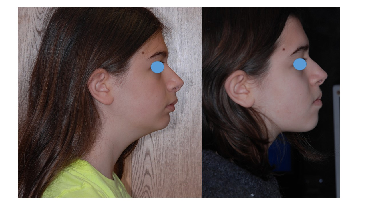 Jaw and facial bone growth