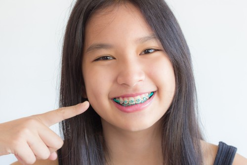 Oral Hygiene Hacks for Life with Braces