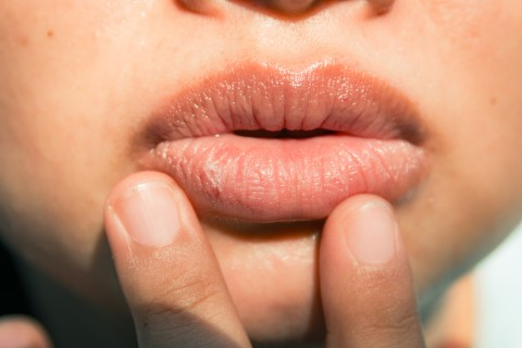 Marijuana Causes Dry Mouth: Why it Matters