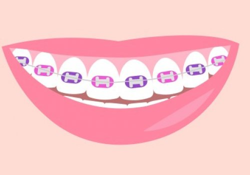 The Ultimate Guide to Choosing Braces Colors